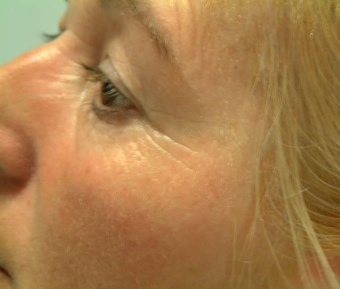 Voor- foto oogbehandeling met peelings bij huidcoach Angenies