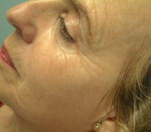 Na- foto oogbehandeling met peelings bij huidcoach Angenies