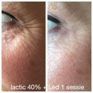Voor en na peeling & ledtherapie bij huidcoach Angenies