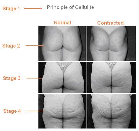 Cellulitis of cellulite een probleem voor bijna alle vrouwen