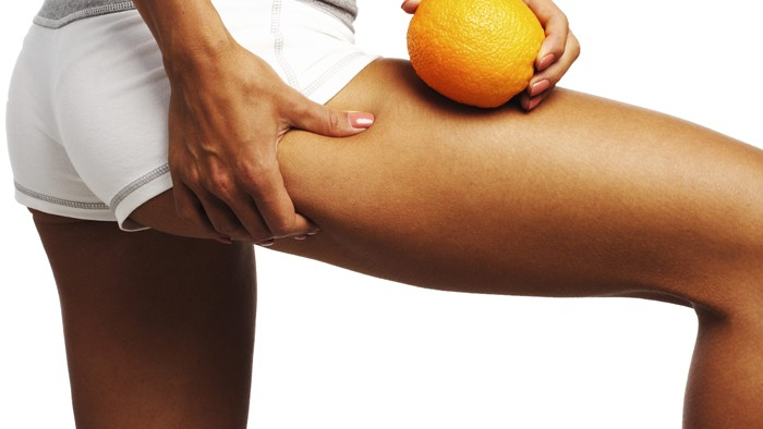 cellulitis of cellulite behandelen
