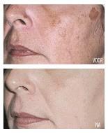 Voor en na Cosmelanbehandeling bij huidcoach Angenies