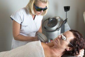permanente laserontharing E-lase van ELOS bij huidcoach Angenies
