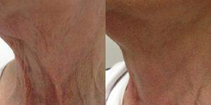 Anti - ageing voor en na Fractora behandeling