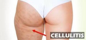 cellulitis behandelen