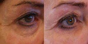 Voor en na plaatselijk FRACTORA behandelingen bij huidcoach Angenies