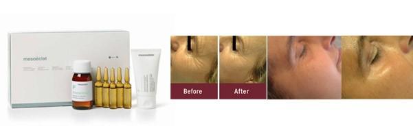 Voor en na behandeling bij huidcoach Angenies