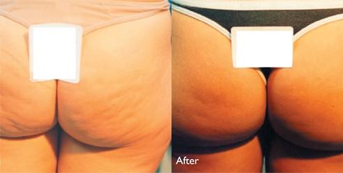 cellulitis bovenbenen weg