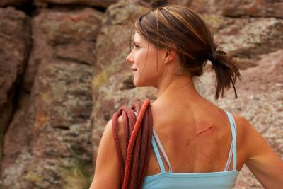 Hypertrofisch litteken bij huidcoach Angenies