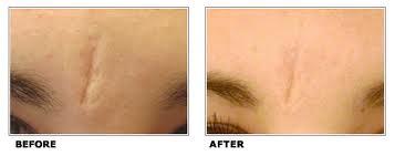 Voor en na littekenbehandeling door huidcoach Angenies