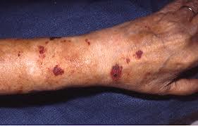 Purpura senilis behandelen bij huidcoach Angenies
