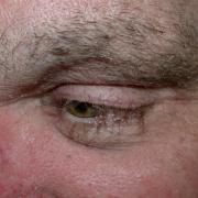 oorzaak donshaartjes gezicht